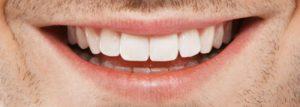 Advanced Teeth Whitening Strips (Dental Whitestrips) - v lekárni - Užitočný - Slovensko