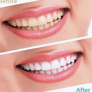 Advanced Teeth Whitening Strips (Dental Whitestrips) - cena - Mienky - Amazon