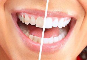 Advanced Teeth Whitening Strips (Dental Whitestrips) - Účinky - kúpiť- test