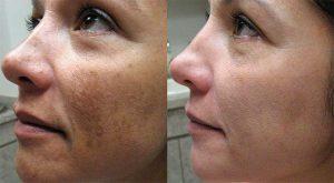 Collagena Lumiskin - Užitočný - kúpiť - cena