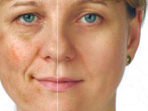 Collagena Lumiskin - Recenzia - forum - výsledok